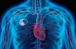 Pacemakers : les dangers de l'interface