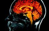Cerveau : découverte du centre de la conscience