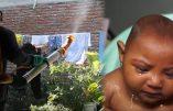 Témoignages des familles américaines au sujet de la microcéphalie : N'avortez pas !!!