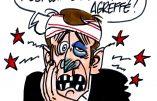 Ignace - L'affaire Benalla fait mal à Macron